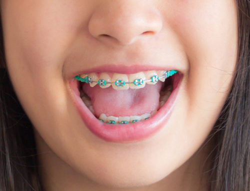 3D Printing Benefits in Orthodontics and Pediatric Dentistry