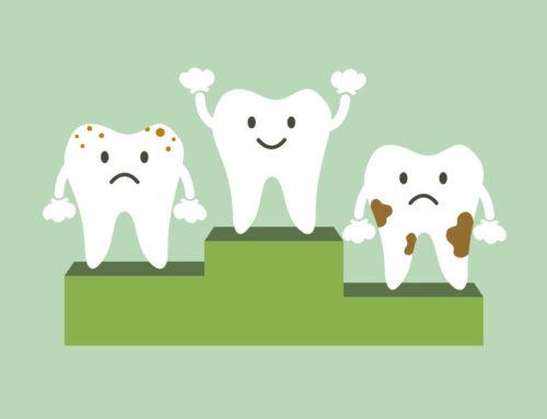 Surprising Treats That Dentists See as Enemies
