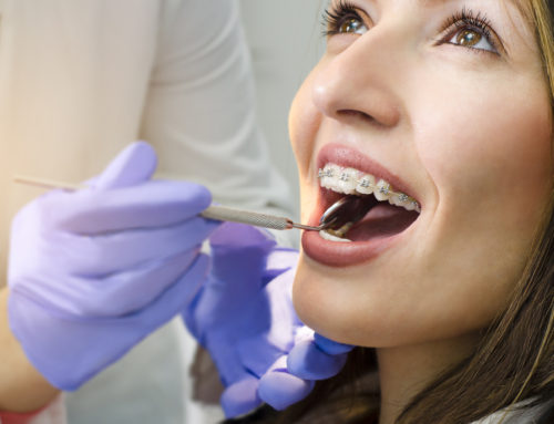 Are Regular Dental Checkups Necessary During Orthodontic Treatment?